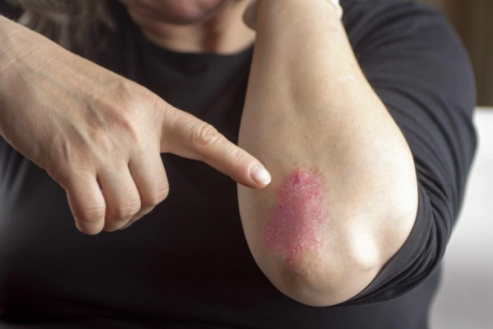 TYPES, CAUSES,AND THE PERFECT HOME REMEDIES FOR ARTHRITIS