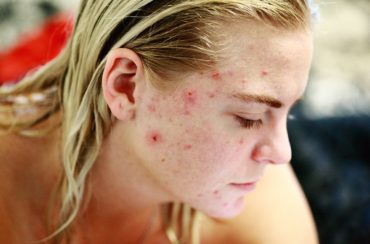 How to Get Rid of Pimples Naturally and Permanently