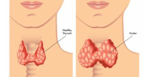 hypothyroidsm